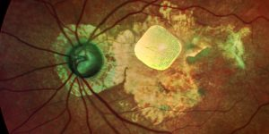 Up to Date Systems Will Assist to Cure Vision to Persons with Complex Illnesses
